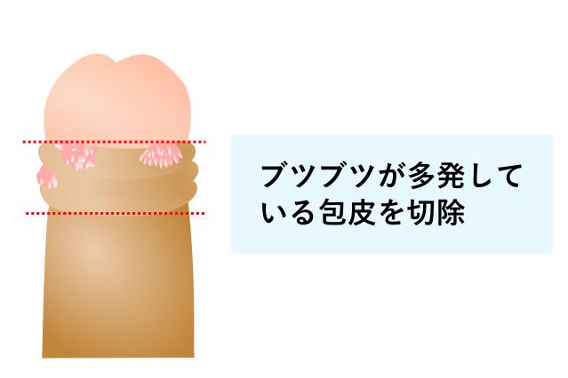 包皮切除のイラスト画像