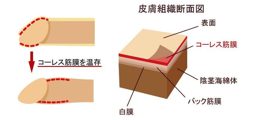 コーレス筋膜皮下形成温存法