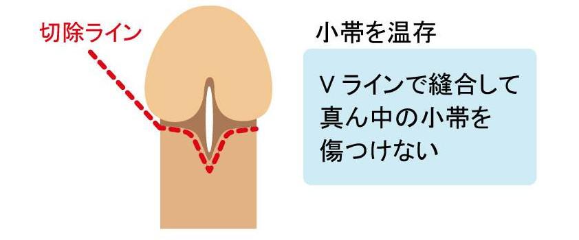 Vカット小帯温存法