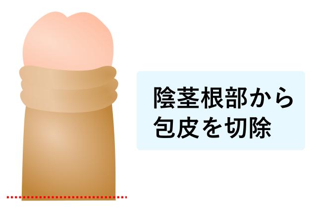 根部包茎手術のイラスト画像